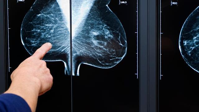 TU Eindhoven werkt aan 'borstvriendelijke' mammogram