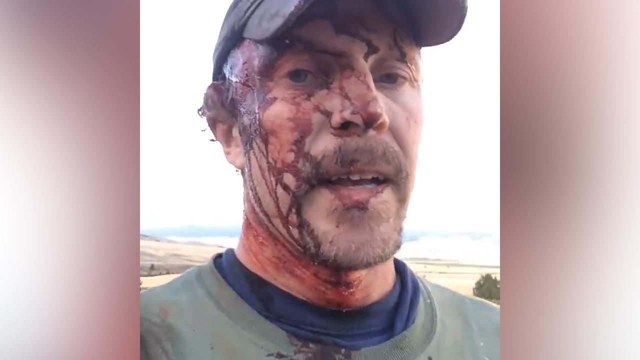 Amerikaan overleeft twee aanvallen van grizzlybeer in Montana