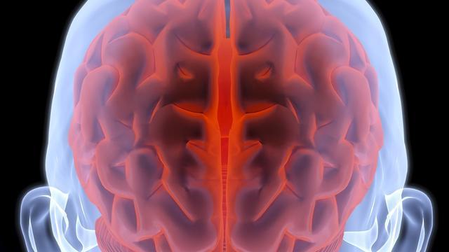 Asociale man heeft afwijkende hersenstructuur