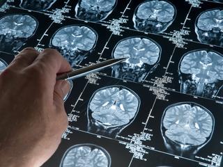Afname serotonine speelt grote rol bij ontstaan ziekte