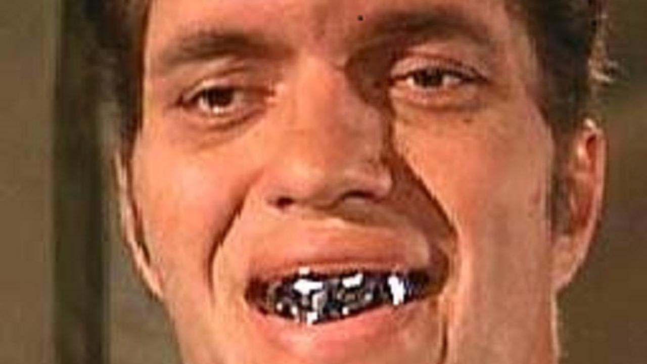 foto tanden