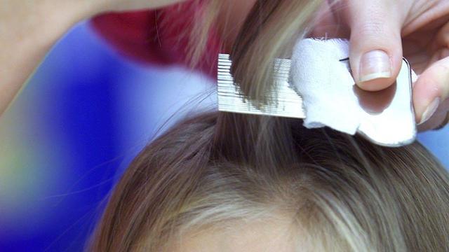 'Aantal gevallen hoofdluis neemt niet af ondanks betere bestrijdingsmiddelen'