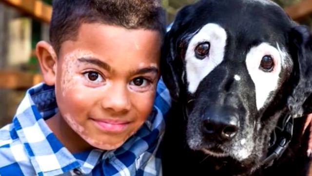 Kind accepteert huidziekte door hond met dezelfde aandoening