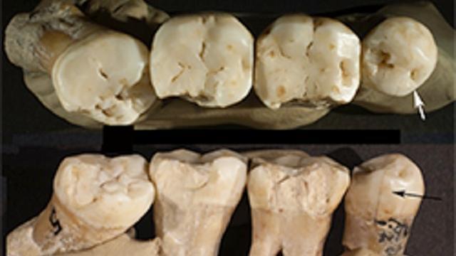 'Neanderthaler behandelde zichzelf tegen kiespijn'
