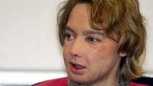 Vrouw die eerste gezichtstransplantatie kreeg overleden