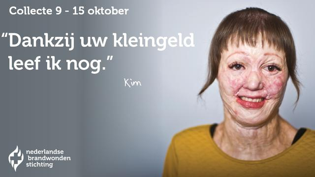 Facebook keurt advertentie Brandwondenstichting af