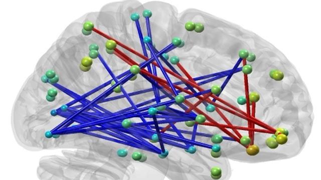Hersenen reageren anders dan verwacht op ADHD-medicijn