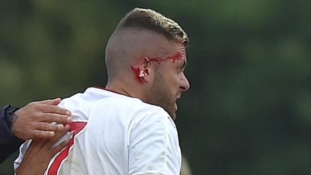 Bordeaux-aanvaller Menez geopereerd aan afgescheurd oor