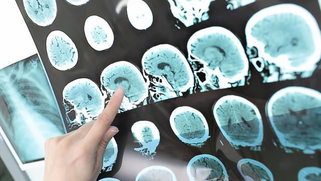 Hersennetwerk kan cognitieve achteruitgang na hersenoperatie voorspellen