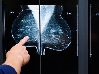 Patiënten van 18 tot en met 65 jaar kunnen vergoeding krijgen