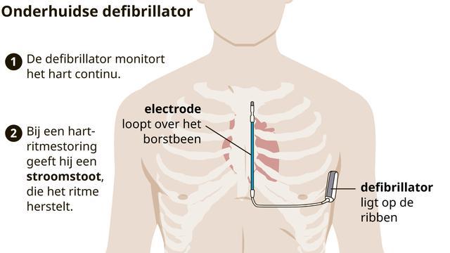 De onderhuidse defibrillator, zoals die bij Ajacied Daley Blind werkt. Het is niet helemaal duidelijk of Christian Eriksen eenzelfde soort ICD krijgt.