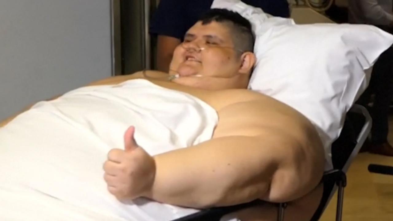 Zwaarste man ter wereld krijgt operatie om gewicht te halveren in Mexico