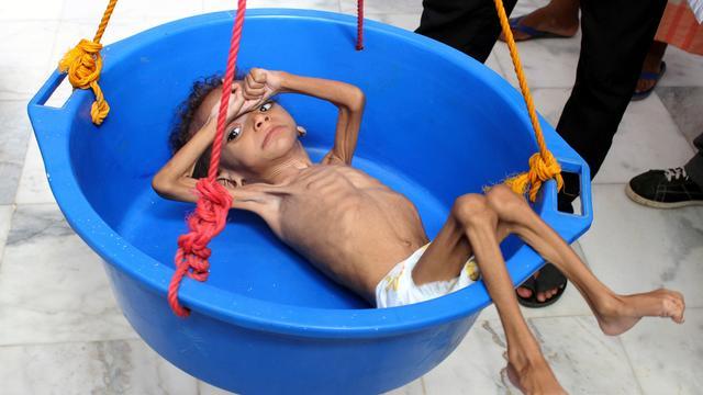 'Vijf miljoen kinderen in Jemen met hongerdood bedreigd'