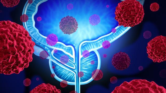 'DNA-handleiding' zorgt voor doorbraak onderzoek uitzaaiing prostaatkanker
