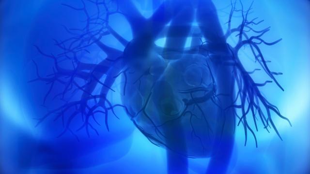 'Te veel bewegen niet goed na hartaanval'