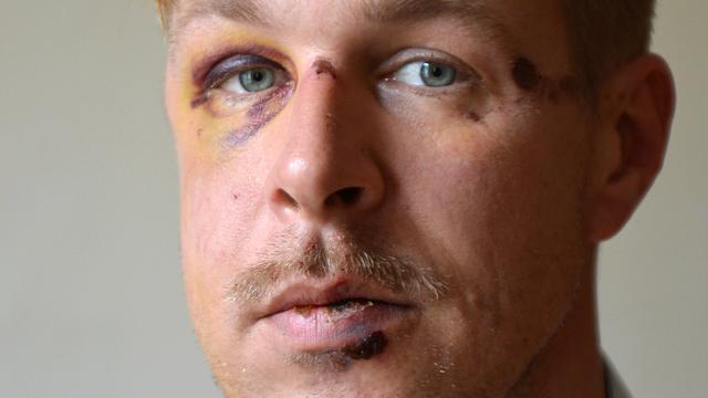Tot 2,5 jaar cel voor anti-homogeweld tegen Nederlander