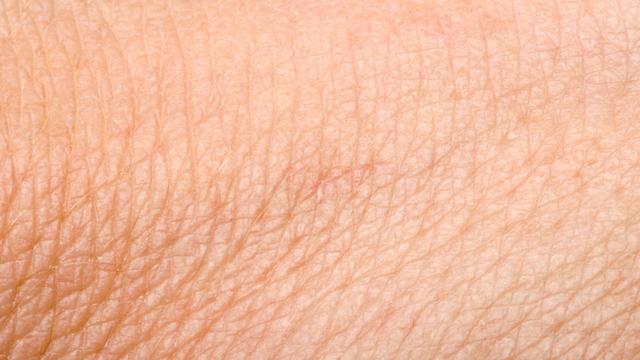 'Huidpigment kan implanteerbare batterij aandrijven'