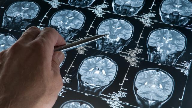 'Ook plaques in hersenen kunnen zorgen voor geheugenproblemen'