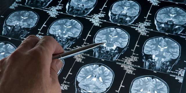 Samsung komt met app om Alzheimer af te remmen