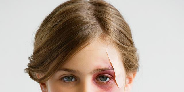 Kind slaan kan langdurige schade veroorzaken