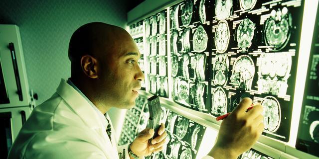 'Veel patiënten met hersenziekte krijgen onjuiste diagnose'