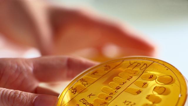 Verenigde Naties roept op tot nieuwe medicatie antibioticaresistentie