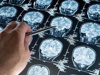 Nieuw medicijn deed besmette gedeeltes van dodelijke ziekte afnemen