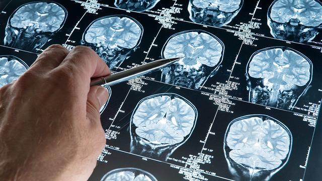 Meer kinderen overleven zeldzame hersentumor