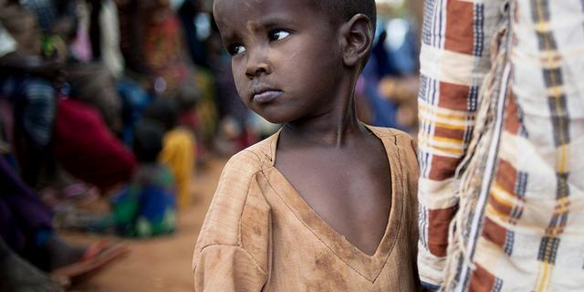 Mazelen doodt gevluchte kinderen Mogadishu