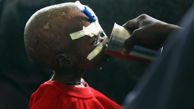 Grote uitbraak cholera in Afrika
