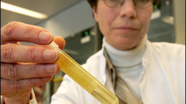 'Hoop op nieuw medicijn tegen tuberculose'