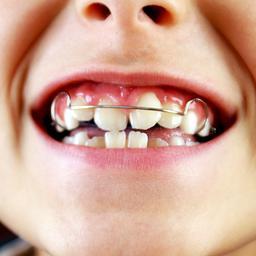 Orthodontiepraktijk krijgt 12.000 euro boete wegens onbeveiligde website