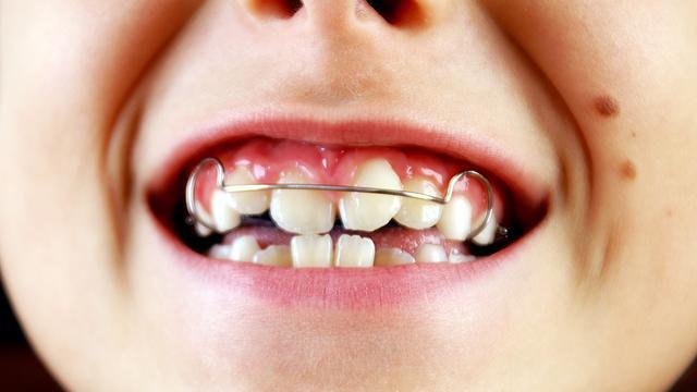 Niet bijbetalen voor tandartsbezoek kind