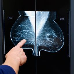 Microchirurgische ingreep herstelt borstgevoel na reconstructie