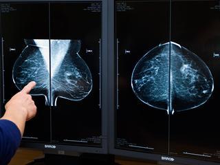 Deelneemster hebben duidelijk minder kans om aan borstkanker te overlijden