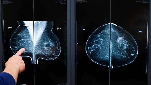 'Grotere kans op borstkanker door mammografie'