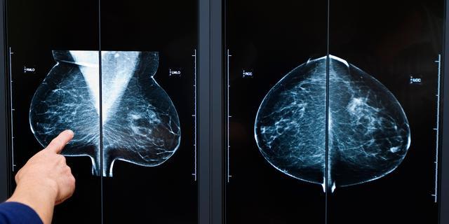 NUcheckt: Thermografie kan mammografie niet vervangen