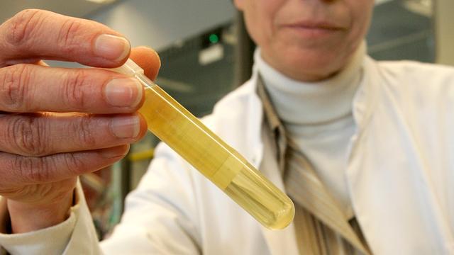 Dodenaantal tuberculose laagste in 10 jaar