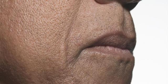 'Man heeft grotere neus dan vrouw door spiermassa'