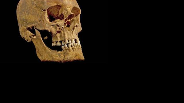 Kankerpatiënt die 3.200 jaar geleden stierf ontdekt