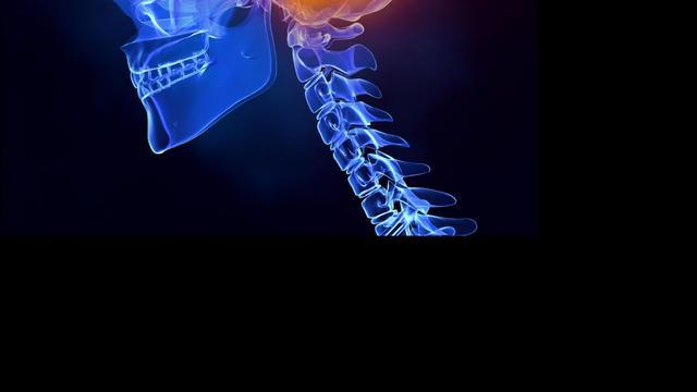 CT-scan bewijst effect behandeling erfelijk longemfyseem