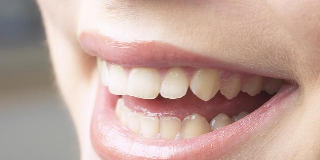 Plakken bacteriën minder aan tanden dankzij fluoride