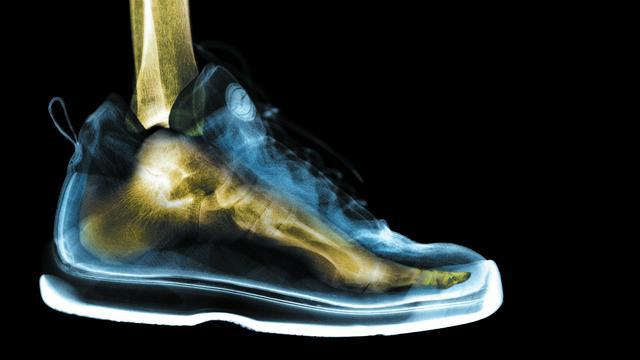Schoenen in maat 66 voor 17-jarige Venezolaan