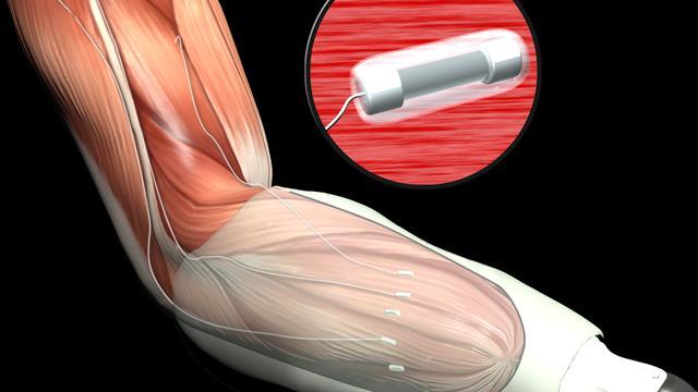 Defensie Amerika ontwikkelt prothese die kan voelen