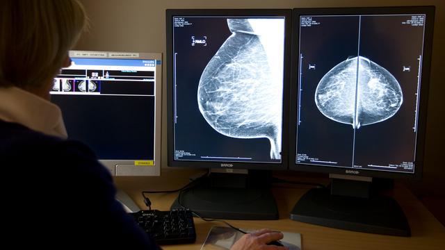 'Verkorten hormoontherapie na borstkanker verbetert kwaliteit van leven'