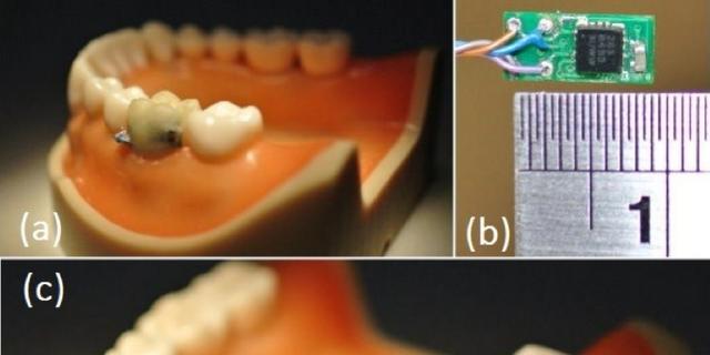 Slimme tand vertelt arts of patiënt rookt en drinkt