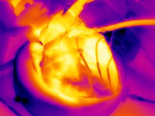 Door hart te koelen tijdens infarct mogelijk minder schade aan hartspier