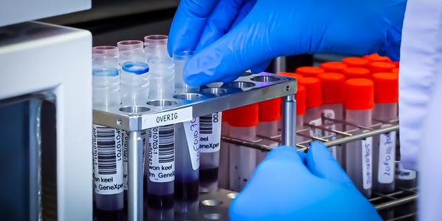 Ministerie praat met extra laboratoria over uitbreiding testcapaciteit