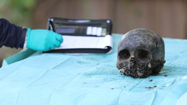 Menselijke schedel en botten gevonden bij graafwerkzaamheden