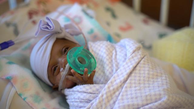 Kleinste baby ter wereld verlaat na zes maanden Amerikaans ziekenhuis